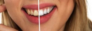 tooth-2414909_640